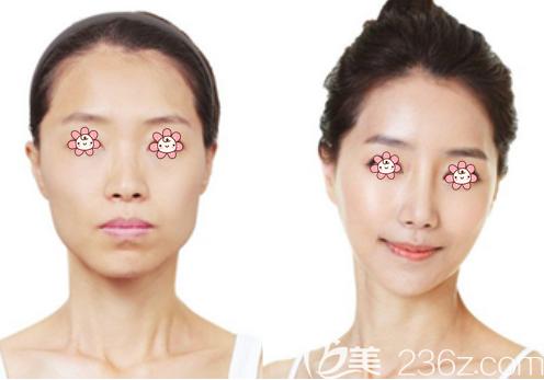 韩国id整形改脸型怎么样
