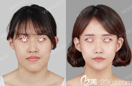 韩国原辰双颚手术案例