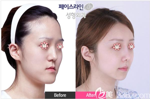 韩国faceline做轮廓手术好不好