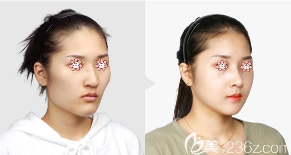 韩国TL整形下颌角颧骨整形案例