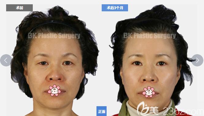韩国BK整形医院眼睑下垂矫正