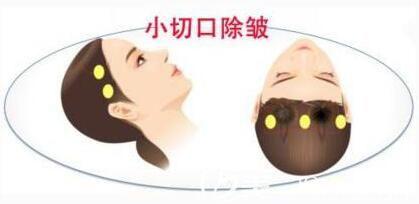 小切口面部提升术可以维持多久呢?
