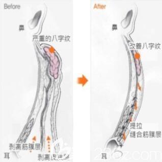 韩国清潭first整形外科小切口提升术效果展示