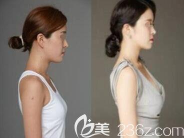 美可整形医院假体隆胸真人前后效果对比