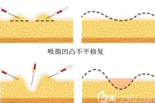 吸脂修复改善术后的凹凸不平