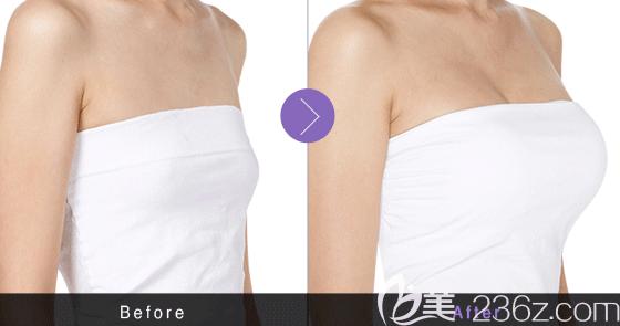 韩国tl整形医院任重赫复合隆胸案例
