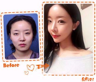 韩国女神整形下颌角整形真人案例
