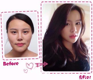 韩国女神整形颧骨整形真人案例