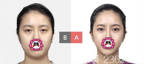 韩国TL整形医院双眼皮案例