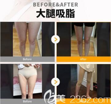 金基范院长吸脂瘦大腿真人前后对比效果图