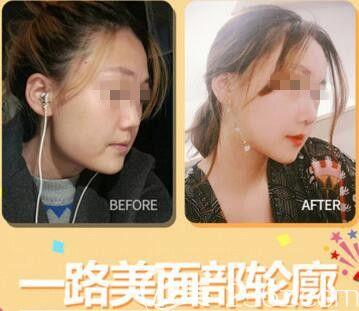 韩国一路美整形外科面部轮廓整形真人案例