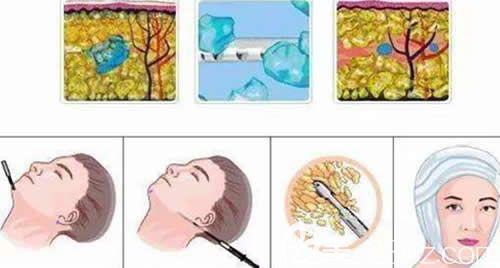 面部吸脂手术原理示意图