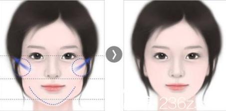 韩国女神医院面部轮廓