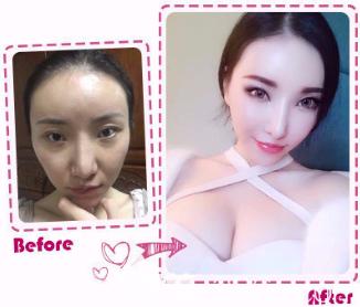 韩国女神颧骨整形真人案例