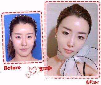 韩国女神下巴截骨真人案例图