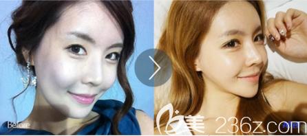 韩国首尔整形面部提升真人案例1