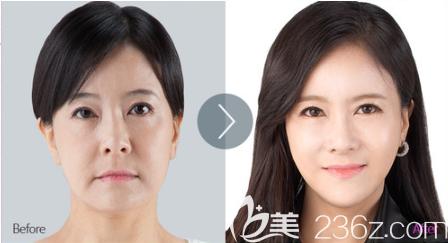 韩国首尔整形面部提升真人案例2