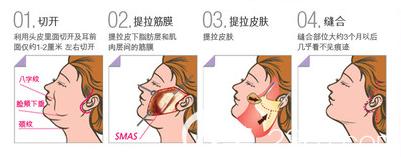 韩国THE整形外科医院面部提升手术示意图