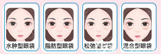各种不同类型的眼袋