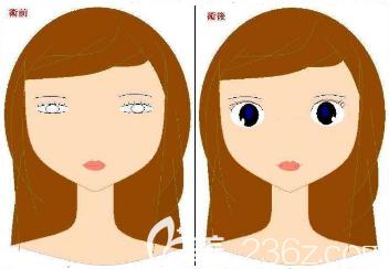 韩国THE CLINIC双眼皮修复特点