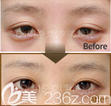 韩国THE CLINIC双眼皮修复真人案例图2