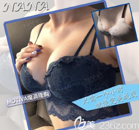 韩国NANA整形外科魔滴隆胸案例