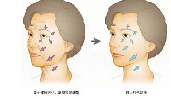 做完小切口除皱术后效果对比图