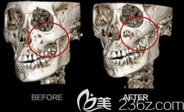 韩国美迪莹整形医院无缝隙3D颧骨缩小术前后CT效果对比图