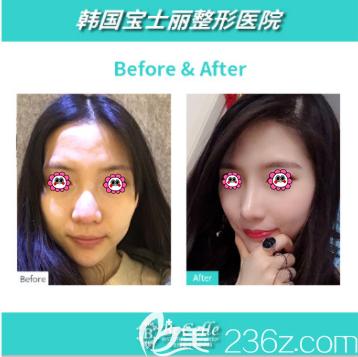 韩国宝士丽整形李承浩鼻修复案例