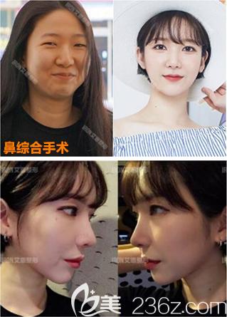 韩国艾恩隆鼻好吗
