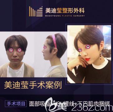 韩国美迪莹整形外科非磨骨面部轮廓手术案例