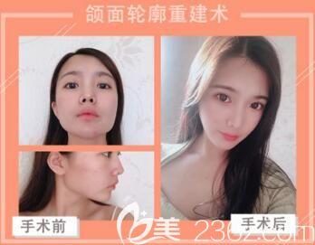 韩国创造美5D面部轮廓立体术真人前后对比效果