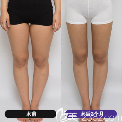 韩国维摩大腿吸脂怎么样