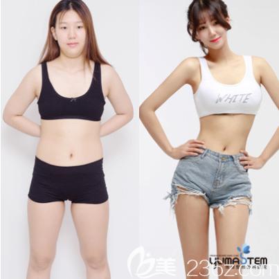 韩国维摩整形外科全身吸脂案例