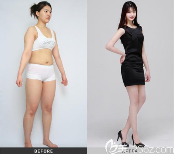 韩国维摩整形吸脂案例