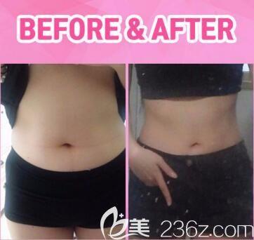 韩国ROVL劳波儿整形医院吸脂瘦腰腹真人前后对比照