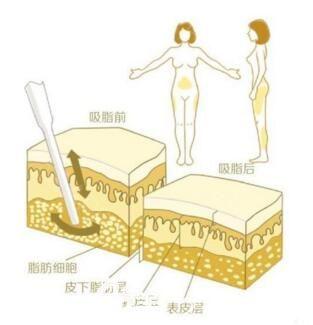 韩国ROVL劳波儿整形医院做吸脂效果好不好?