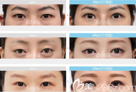 韩国GNG医院眼部整形真人案例图
