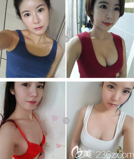 韩国欧佩拉整形外科怎么样