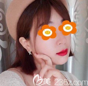 谁说千万别去福州台江整形,我觉得李文信为我做肋骨鼻综合效果就挺不错