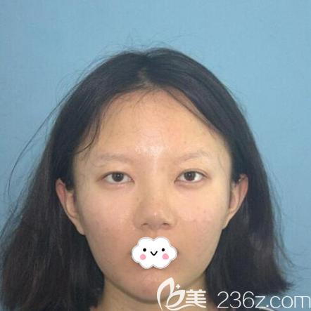 深圳yestar艺星医疗美容整形医院朱辉术前照片1
