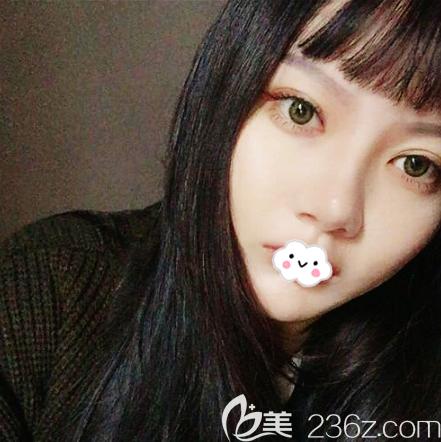 打听到深圳北大医院朱辉医生在深圳yestar艺星整形医院坐诊后就慕名找他做了双眼皮