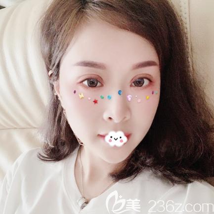 深圳阳光整形美容医院袁野术后照片1