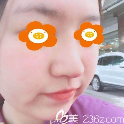 福州海峡陈建忠为我隆鼻术后15天图片