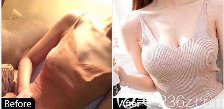 深圳南雅姚成红做的假体隆胸案例