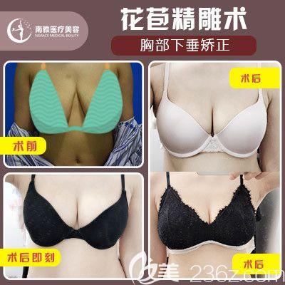 深圳南雅姚成红做的胸部下垂矫正(花苞精细雕刻手术)案例