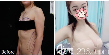 深圳京韩兰茂梵美王沛森做的自体脂肪丰胸案例
