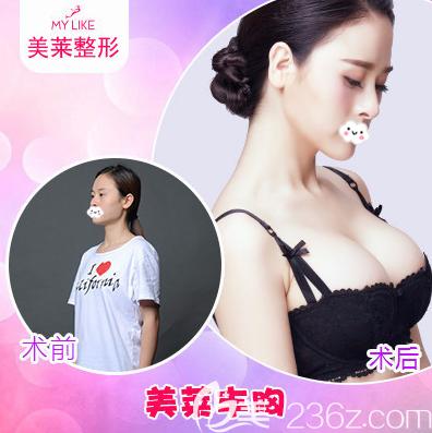 深圳美莱整形医院徐占锋隆胸案例