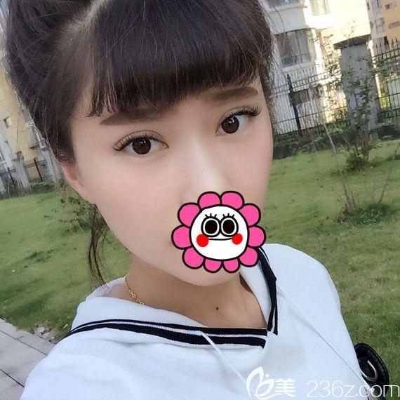 宁波江北雅韩医疗美容门诊部龚涛术后照片1