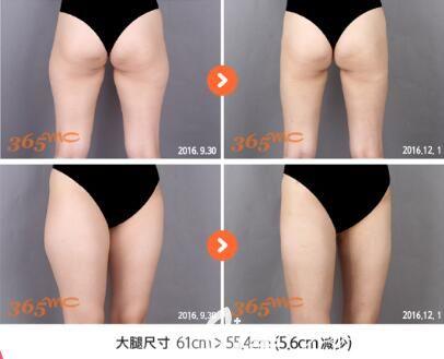 韩国365mc医院吸脂瘦大腿真人前后对比照